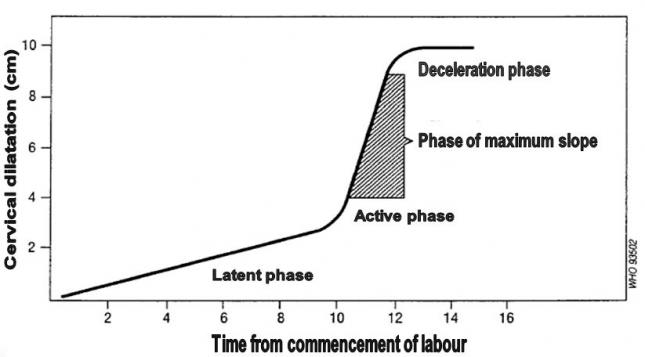 Friedman curve